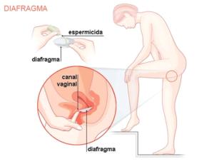 diafragma é outra alternativa de contracepção