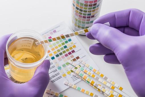 infecção urinária: é preciso tratar!